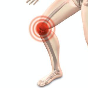 Knee Pain OA