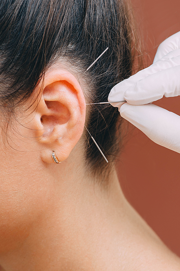 Auricular acupuncture at REP Physio in Edmonton