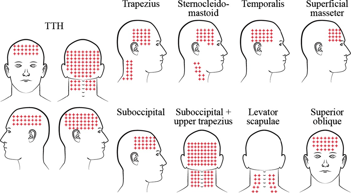 Types of Tension Headaches